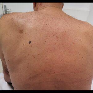 Melanoma en la espalda de un paciente con fotodaño