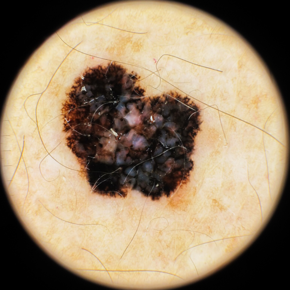 Dermatoscopia melanoma