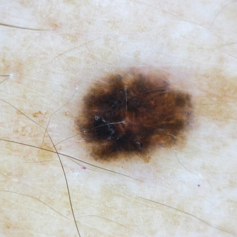 Dermatoscopia cáncer de piel melanoma