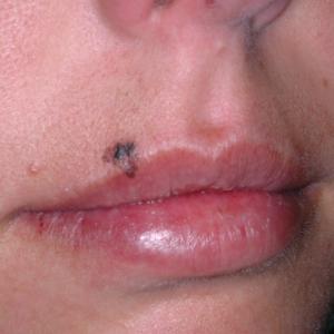 Melanoma en el labio superior en una paciente joven