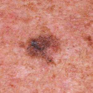Melanoma desarrollado sobre una piel fotodañada