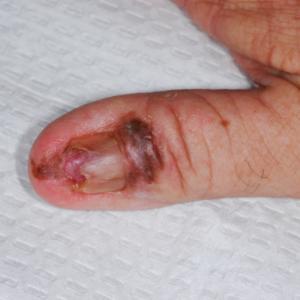 Melanoma invasor en la uña del pulgar de un paciente
