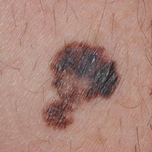 Melanoma que muestra todos los criterios del ABCDE