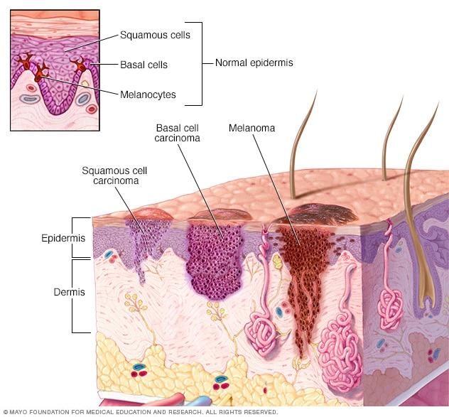 Diagrama que muestra histológicamente los diferentes tipos de cáncer de piel