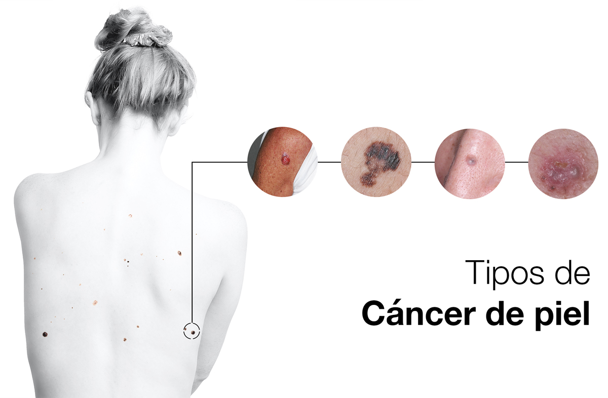 Diagrama que muestra los diferentes tipos de cáncer de piel
