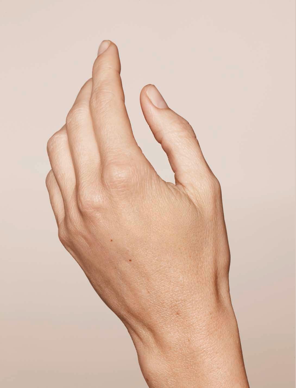 Botox manos