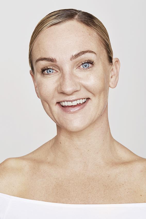 Paciente feliz días después de la aplicación de botox