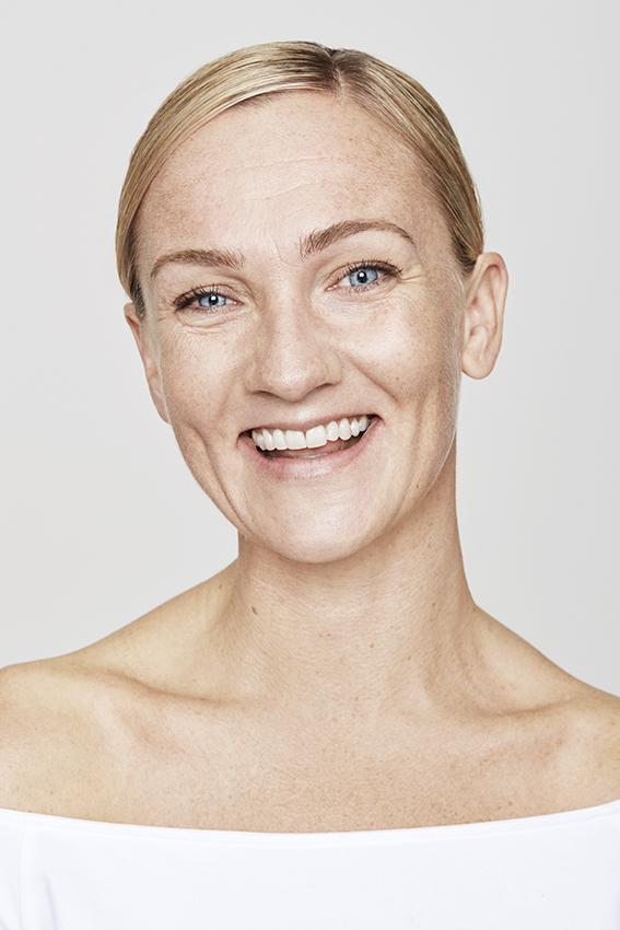 Paciente feliz días antes de la aplicación de botox
