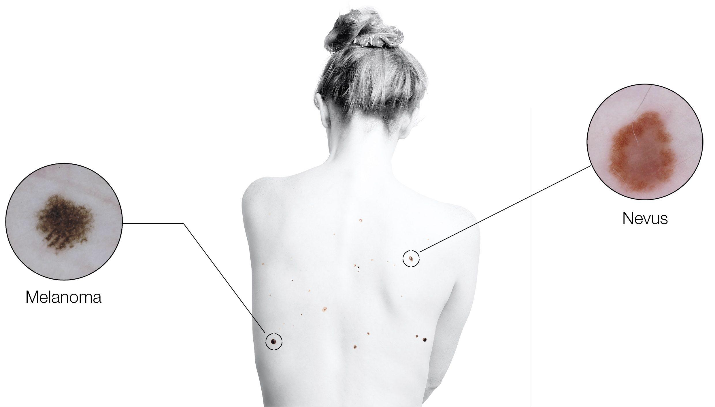 Dermatoscopia utilizada en el seguimiento digital de pacientes de alto riesgo de melanoma