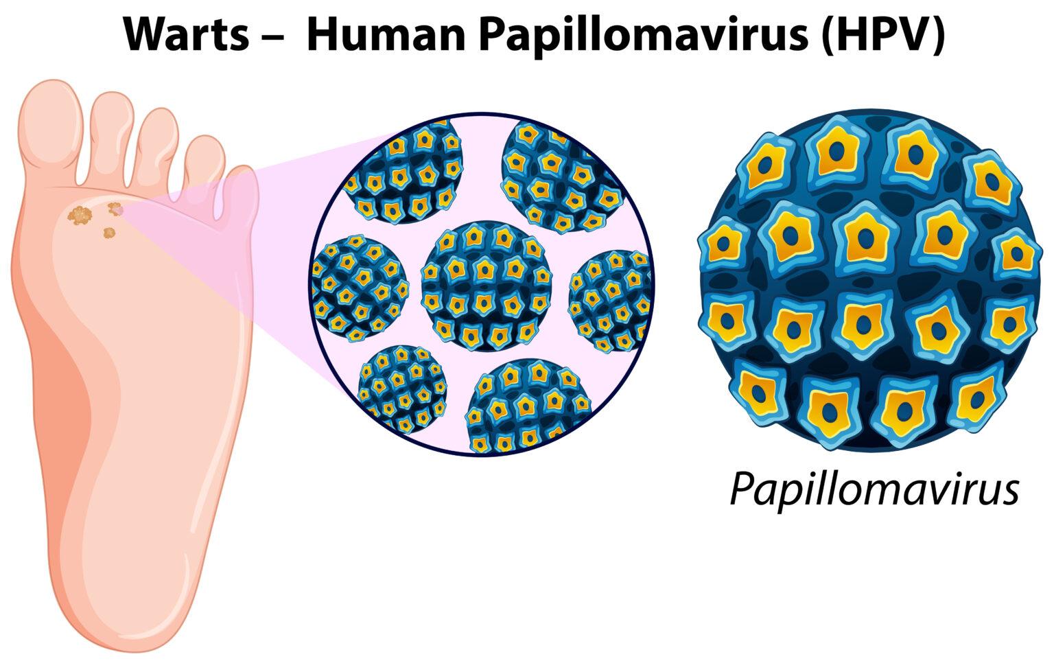 Diagrama que muestra como eliminar verrugas víricas causadas por el papiloma