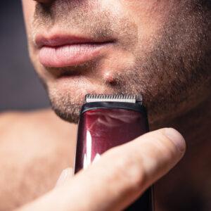 Nevus dérmico en el mentón de un hombre que se irrita al afeitarse