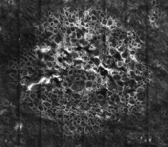 Microscopia confocal de un nevus melanocítico