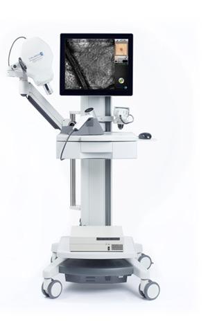 microscopia confocal mostrando un melanoma