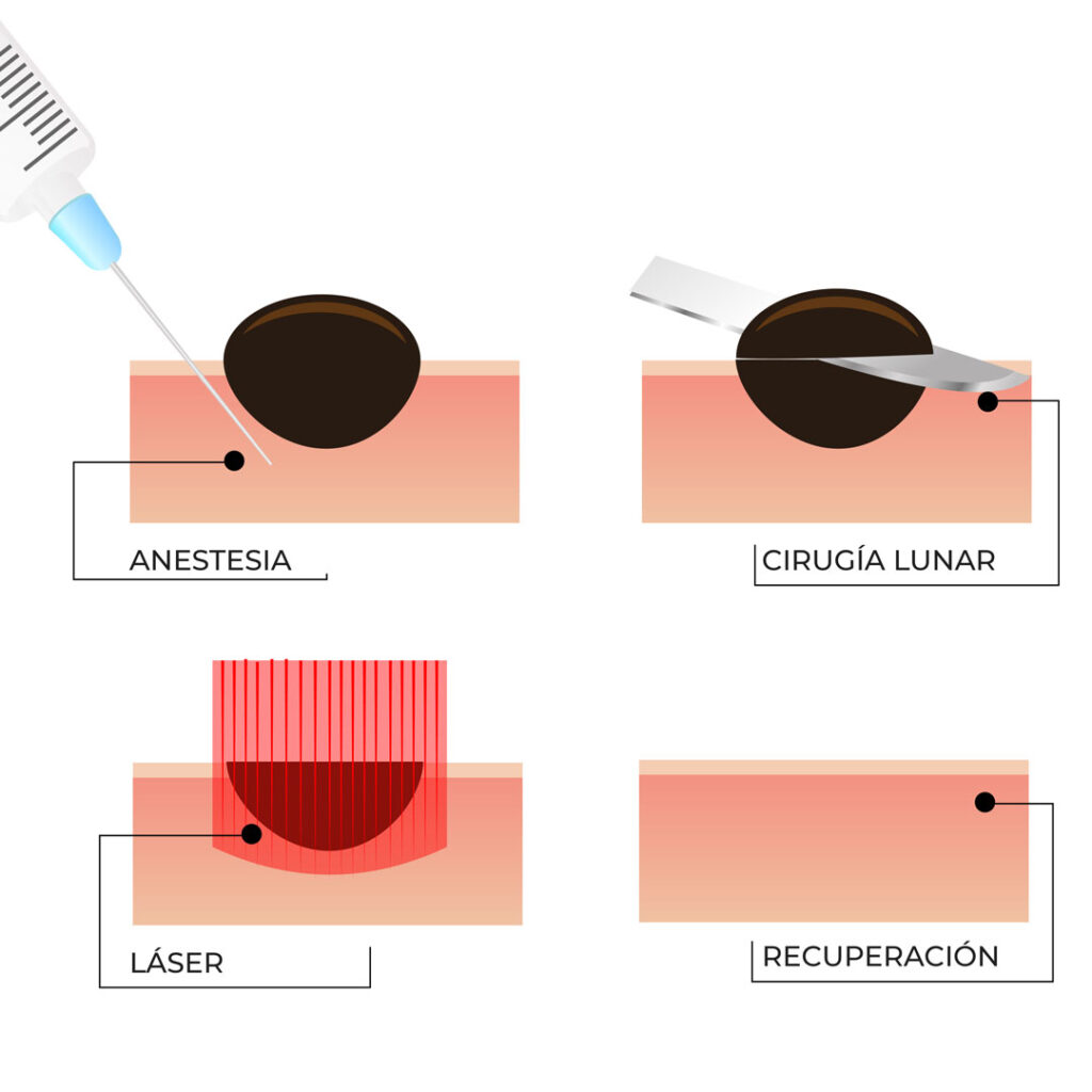 Diagrama que muestra cómo quitar un lunar con láser