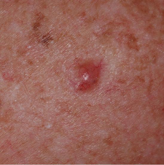 Detalle de un carcinoma basocelular