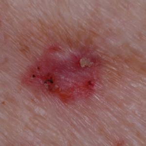 Detalle de un carcinoma basocelular que es un tipo de cáncer de piel