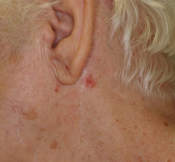 Carcinoma basocelular en la región retroauricular de una mujer mayor
