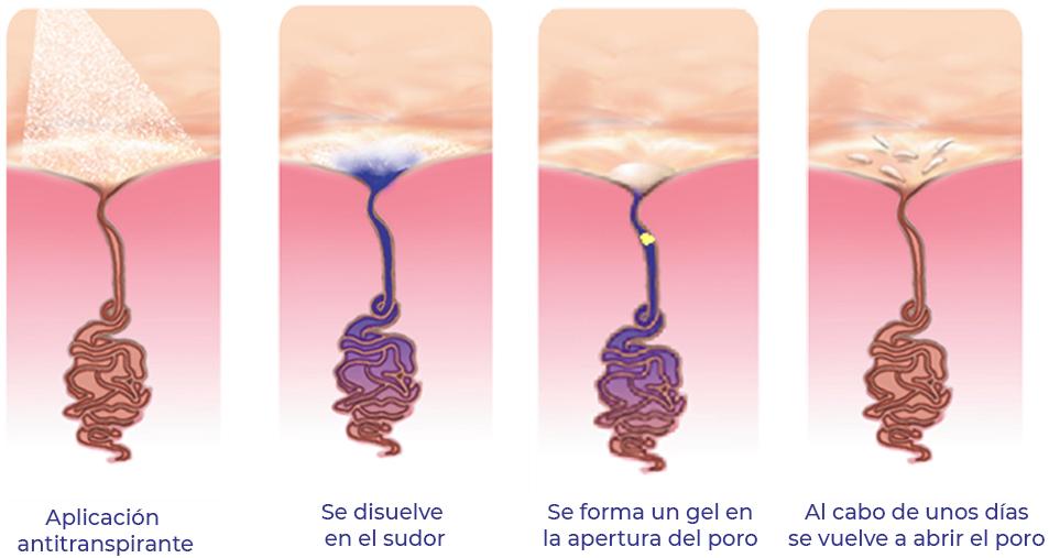 Mecanismos de acción de los antitranspirantes en la hiperhidrosis