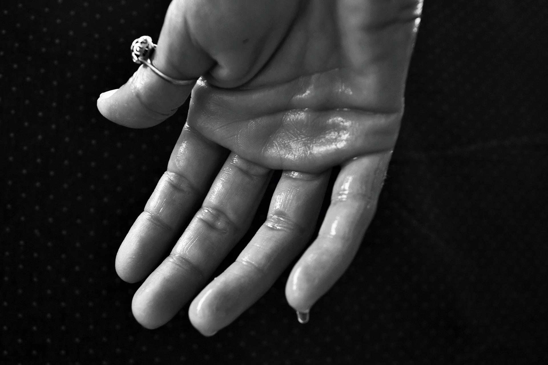 sudoración excesiva en las manos