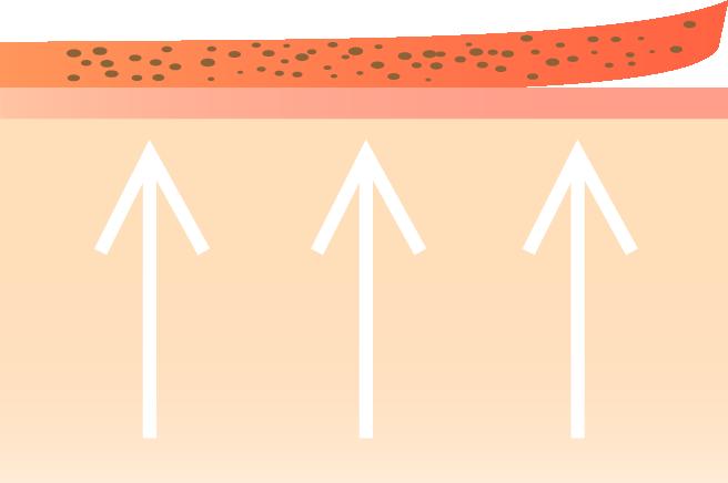 Después de la realización del IPL se muestra la eliminación de pigmento en la piel