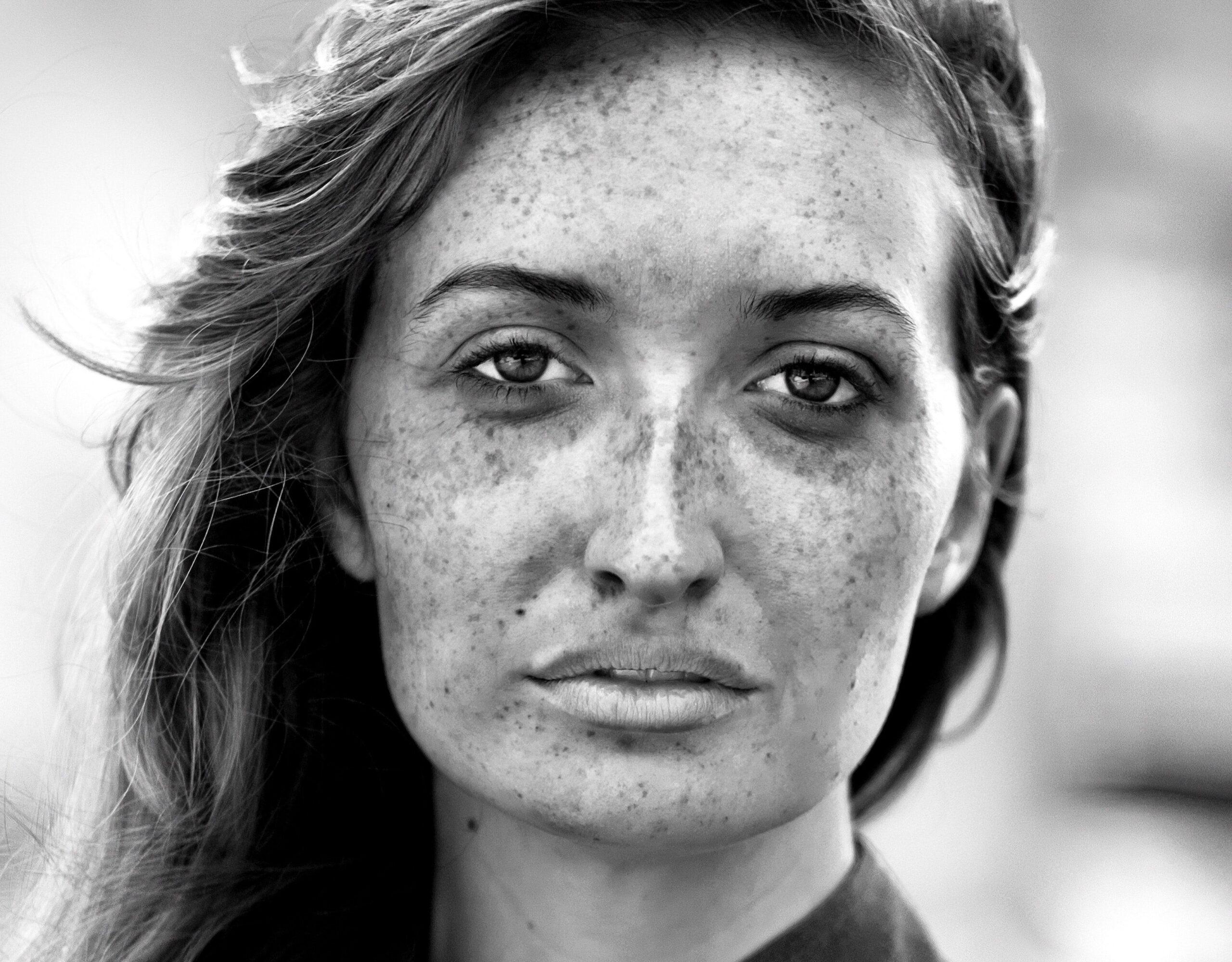 Mujer con fotodaño que tiene pecas en la cara y podría tener un tipo de cáncer de piel