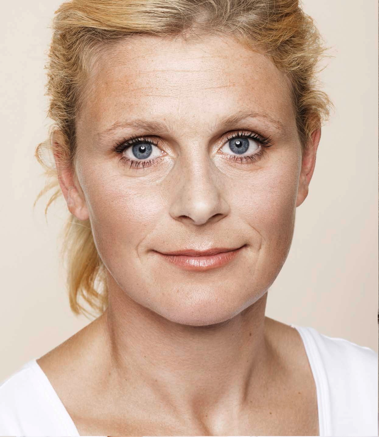 Mujer de edad media antes del tratamiento con ácido hialurónico facial