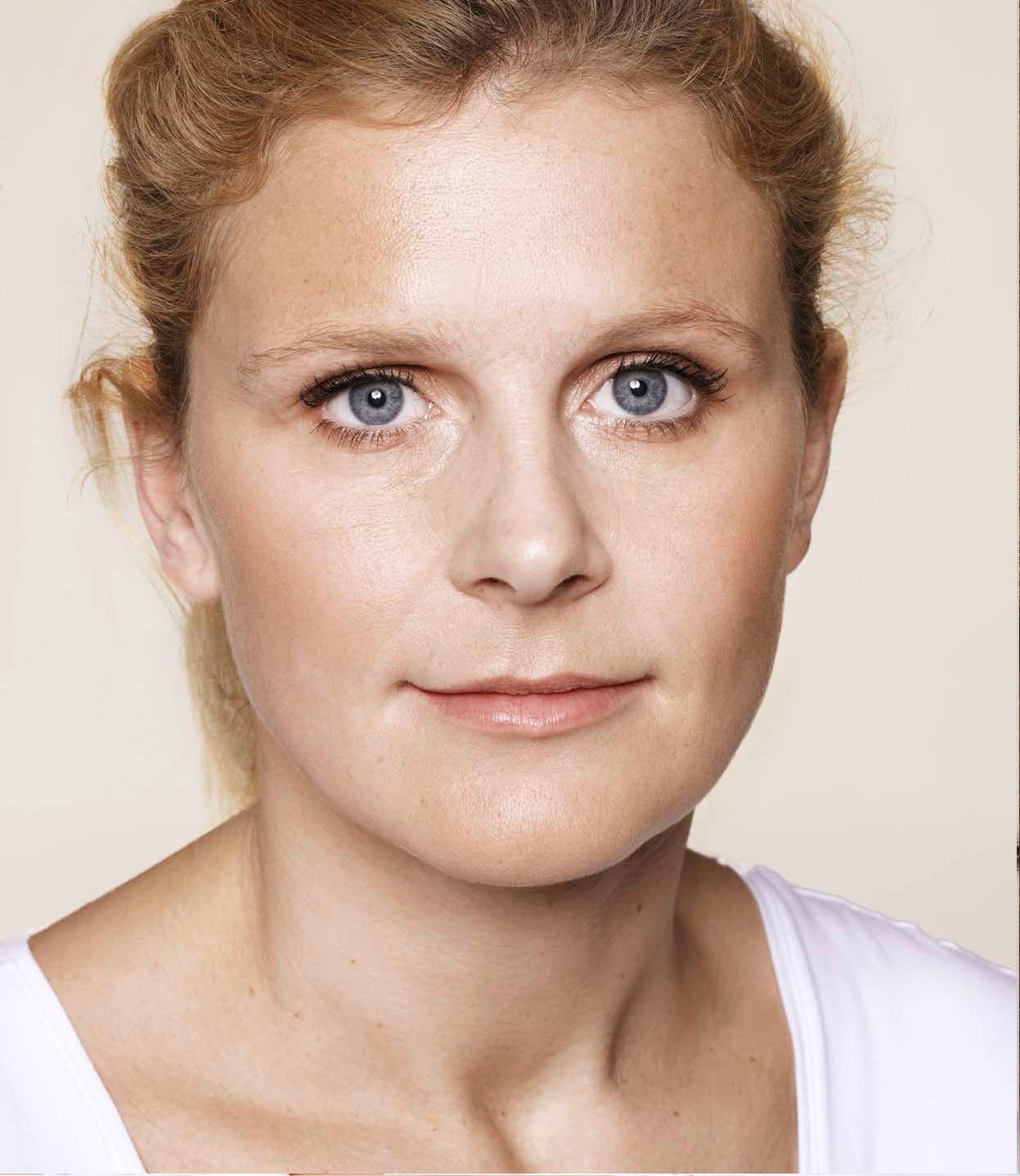 Mujer de edad media después del tratamiento con ácido hialurónico facial