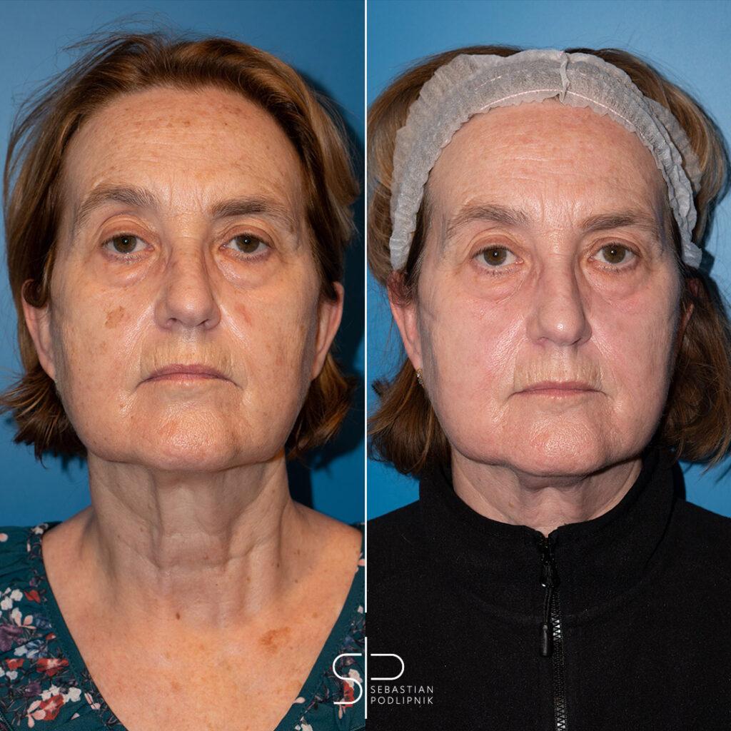 Antes y después de una paciente que se ha realizado láser de luz pulsada intensa para quitar las mandas de la cara