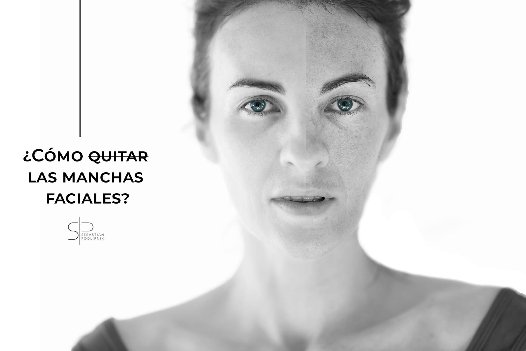 Portada de una post con un retrato de una mujer en blanco y negro que tiene manchas en la cara.