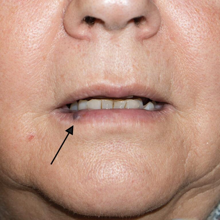 Paciente mayor que presenta una laguna vascular en el labio inferior