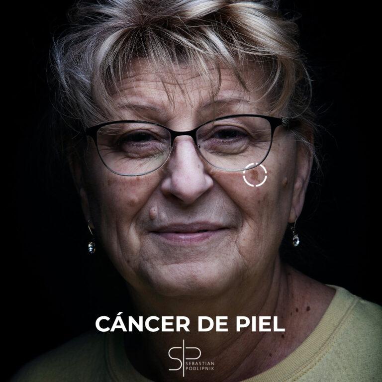 Retrato de una mujer mayor con posible cáncer de piel de tipo léntigo maligno facial