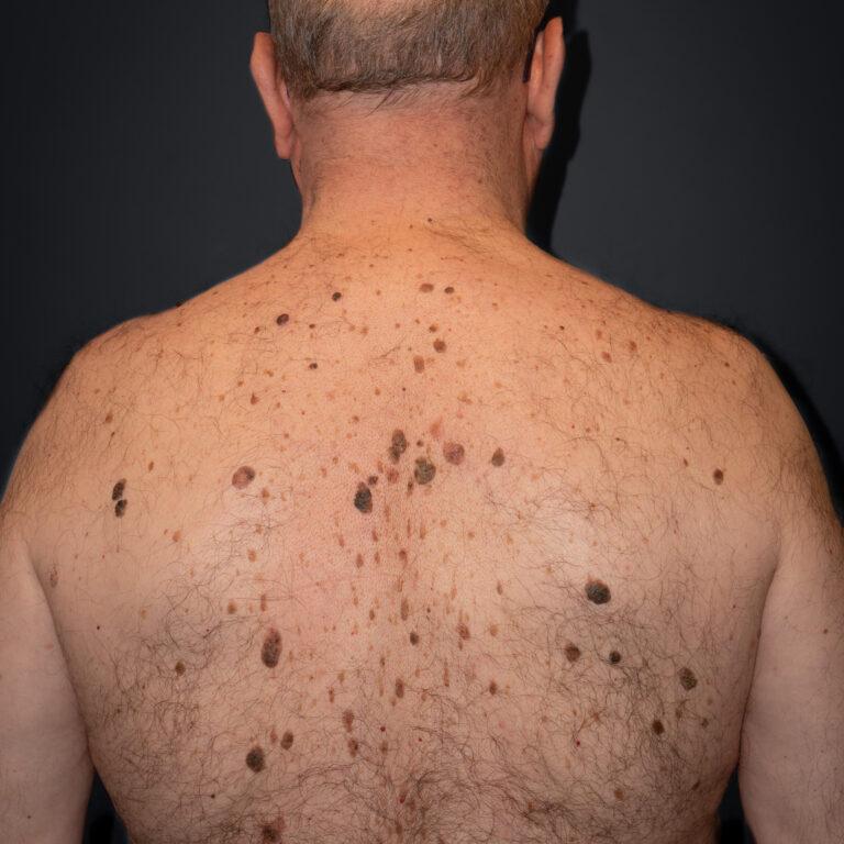 Paciente con muchas queratosis seborreicas en la espalda y algún lunar con costra