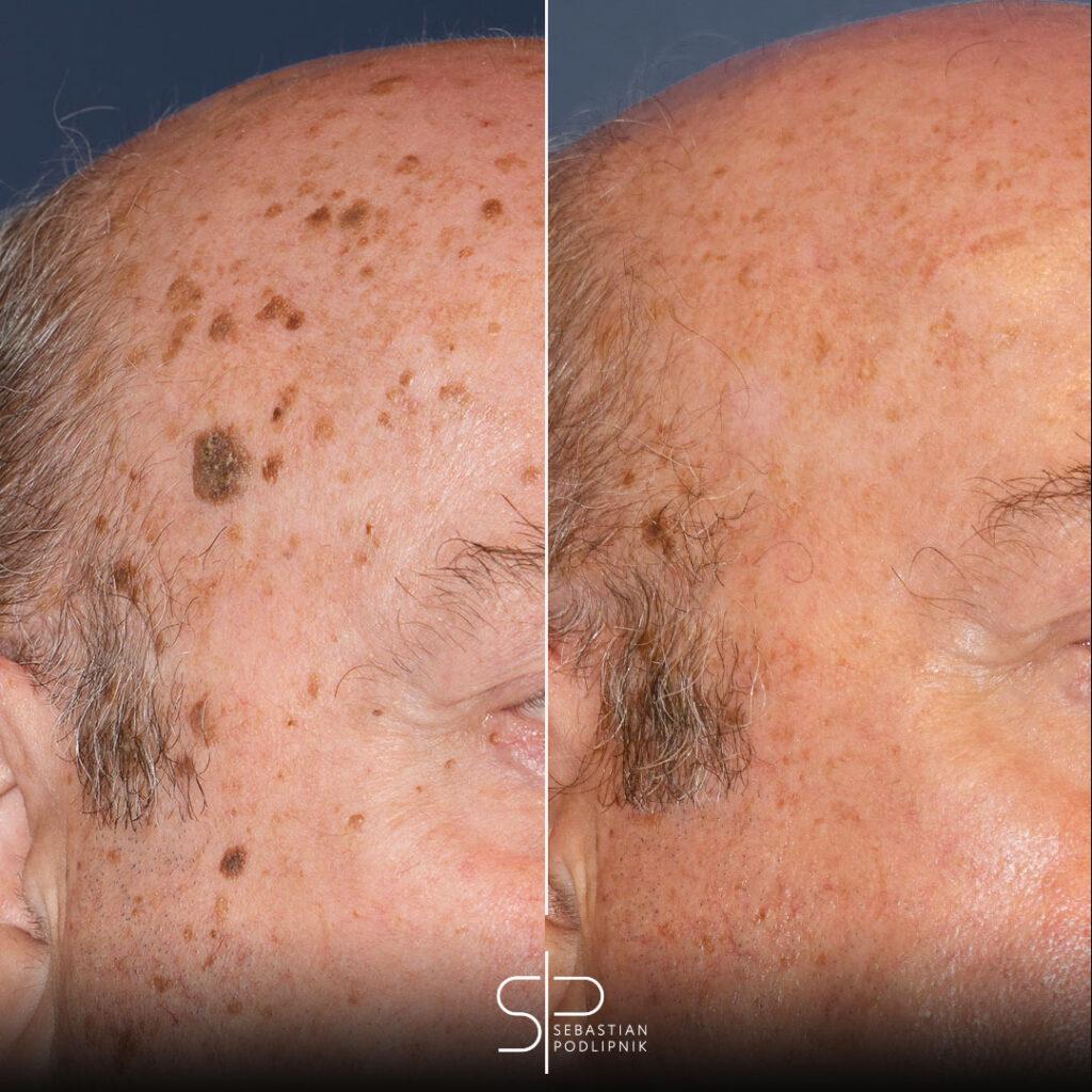 Resulta del tratamiento con láser de CO2 de queratosis seborreicas faciales o lunar con costra
