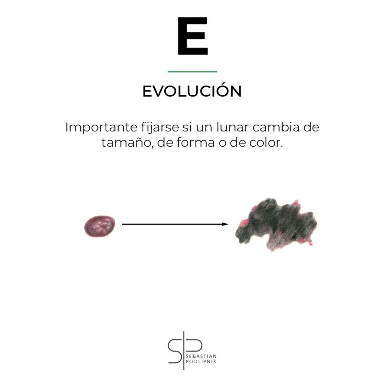 Regla del ABCDE de melanoma mostrando la E de evolución de un lunar maligno