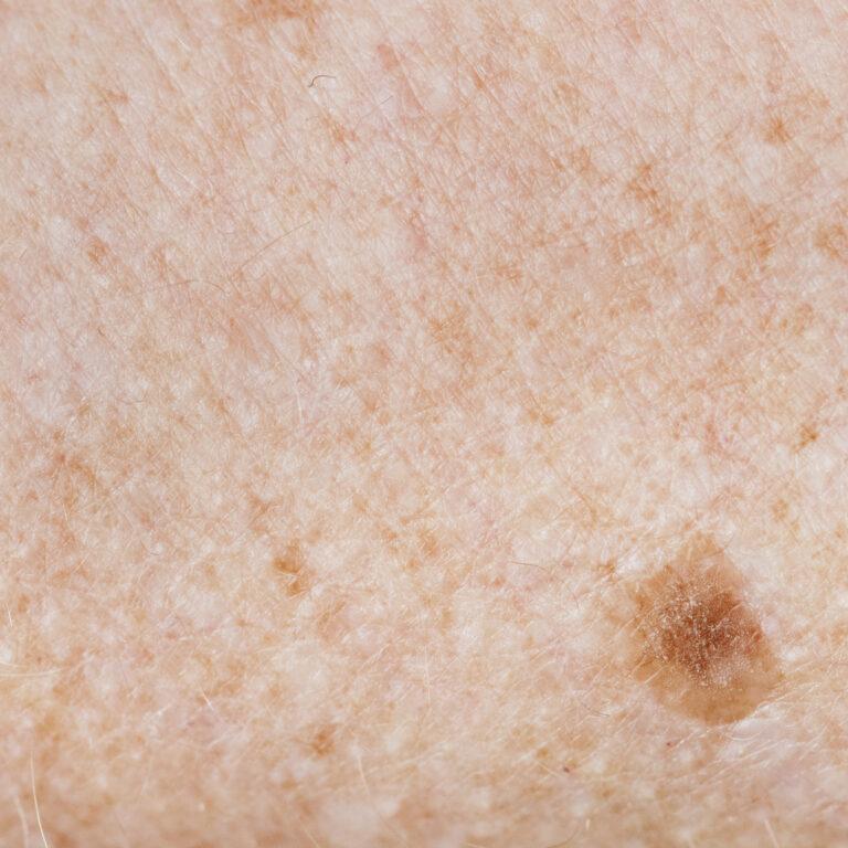Nevus juntural sobre una piel fotodañada