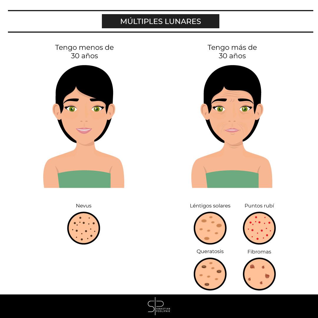 Infografía que muestra como la aparición de muchos lunares depende de la edad