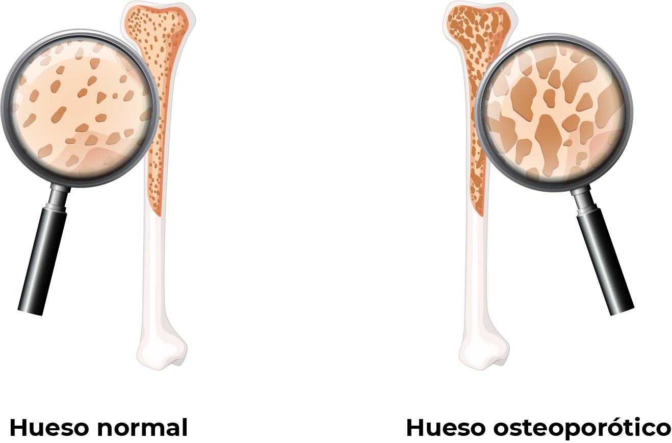 Hueso normal vs un hueso osteoporótico