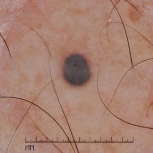 Dermatoscopia de nevus azul