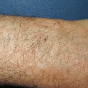 Imagen dermatológica de un nevus azul