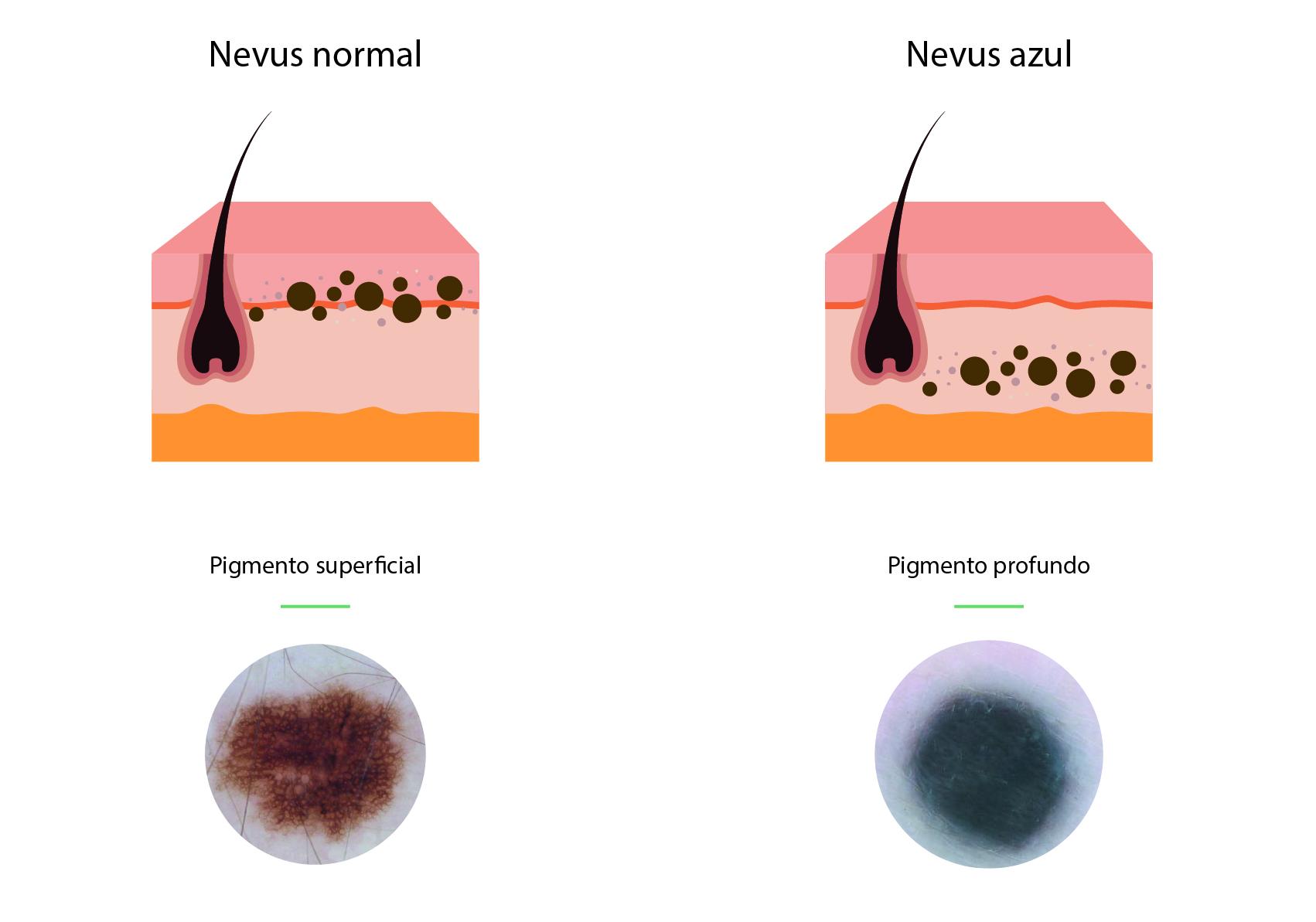 Diagrama que muestra las diferencias entre un nevus normal de un nevus azul