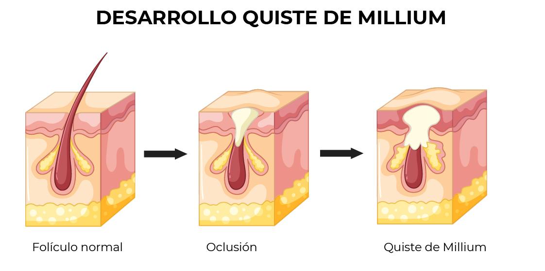 Ilustración que muestra el desarrollo de quistes de millium
