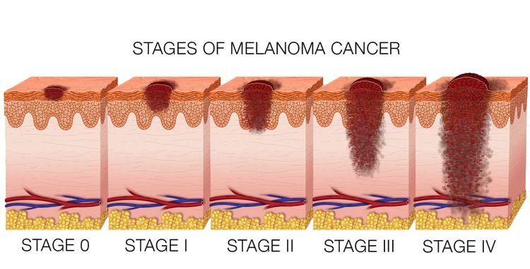 Infografía que muestra los estadíos del melanoma o lunares malignos