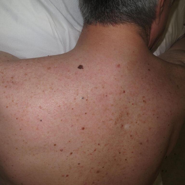 Lunar maligno o melanoma en el hombro de un paciente