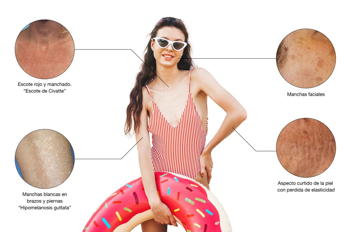 Mujer modelando los daños producidos por el sol al no utilizar los mejores protectores solares