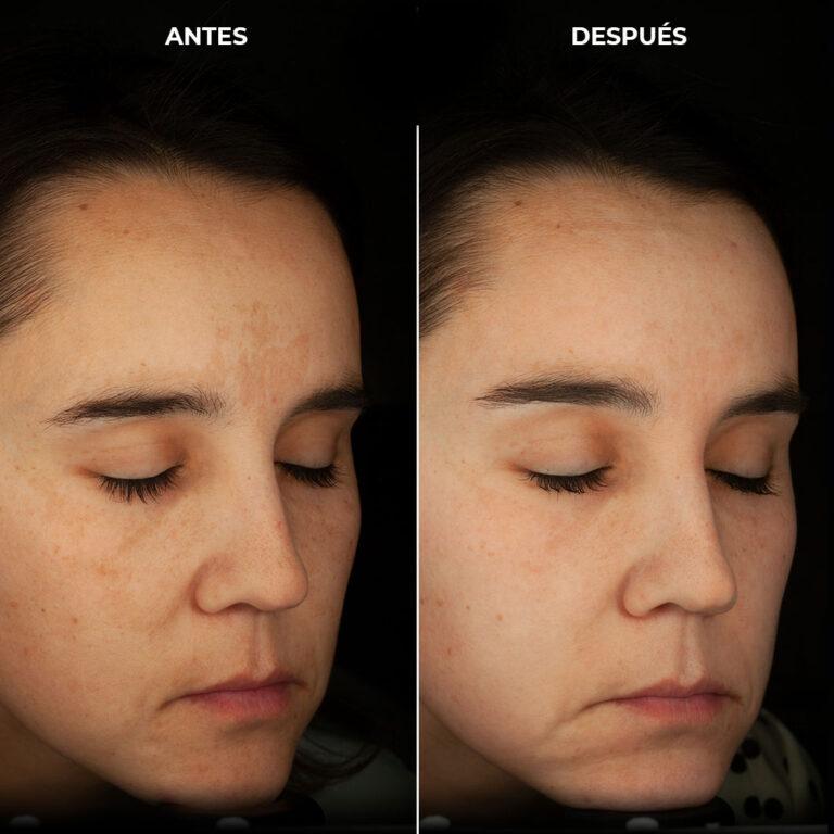 Melasma leve o manchas faciales en tratamiento con cremas