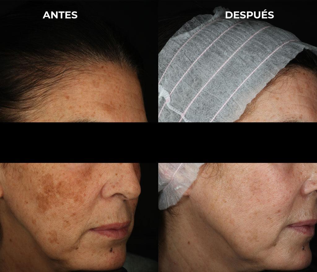 Manchas faciales con léntigos más melasma facial en una paciente mostrando un antes y depsués