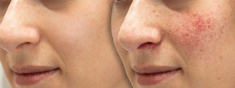 Antes y después del tratamiento de rosácea con luz pulsada intensa (IPL)