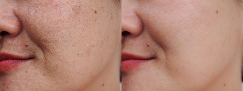 Antes y después del tratamiento láser de manchas en la cara con luz pulsada intensa en una mujer jóven