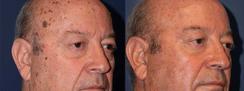 Antes y después del tratamiento con láser CO2 de queratosis seborreicas