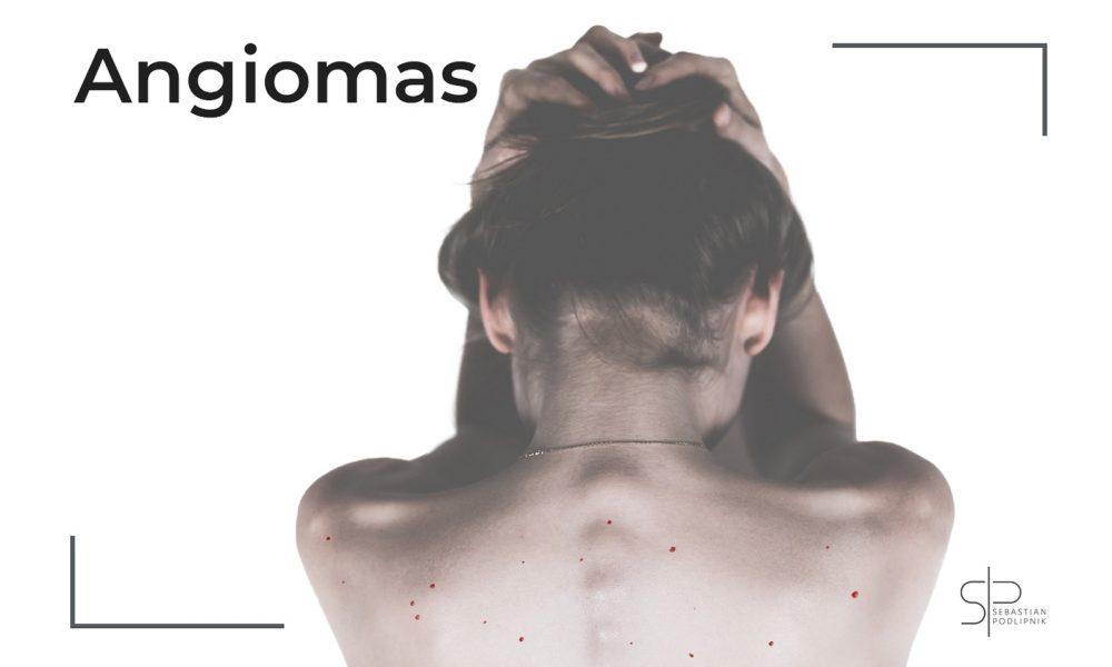 Paciente de dermatología que presenta lunares rojos o puntos rojos en la piel de la espalda